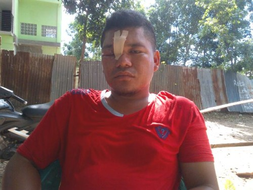 Inilah Rojerio Martins, korban penganiayaan oknum polisi di Pasar Baru Atambua.